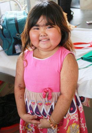 Nụ cười đáng yêu của bé Trúc Trinh ở bệnh viện. Mắc bệnh xuất huyết giảm tiểu cầu mãn tính nên cơ thể bé Trúc Trinh bị phù, mọc nhiều lông do tác dụng phụ trong quá trình điều trị căn bệnh này gây ra.