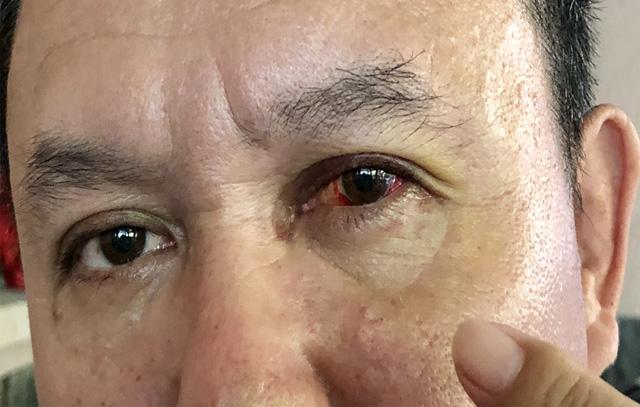 Vết thương trên mắt trái của lái xe Hiệp.